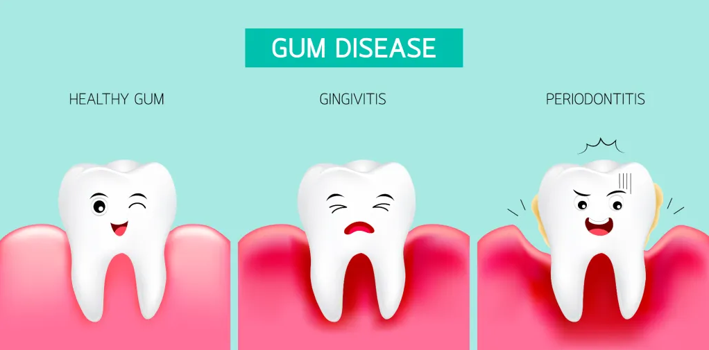- VISIT A DENTIST REGULARLY TO ELIMINATE PLAQUE BUILDUP AND HELP PREVENT GINGIVAL DISEASE