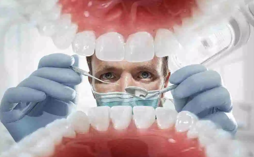 MOUTH PROSTHESIS