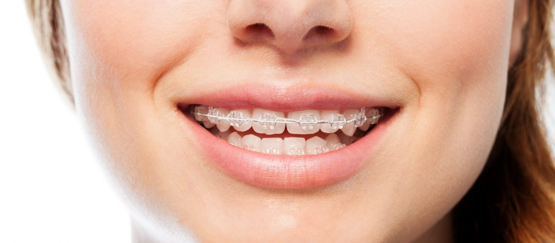 Close-up picture of happy woman's smile with orthodontic clear braces